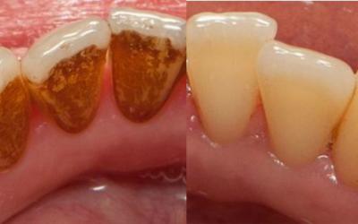 Pjeskarenje zubi – o čemu se tu zapravo radi?